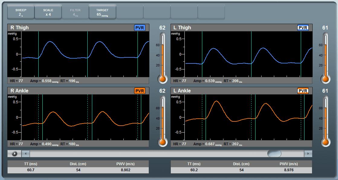 falcon-pulse-wave-velocity-pwv-results-screen
