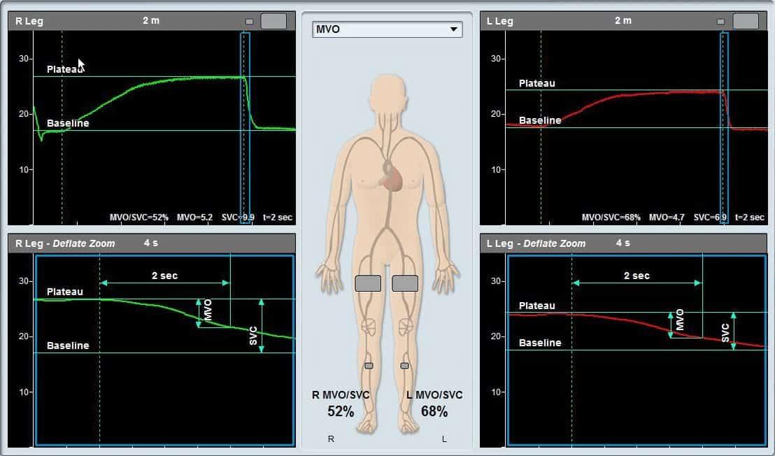 mvo-svc-bilateral-screen