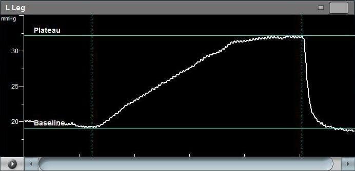 mvo-svc-graph-large