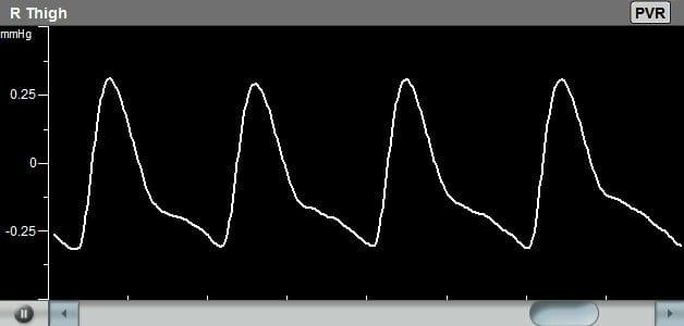 pulse-volume-recording-video-overlay