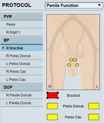 vascular-penile
