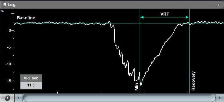 venous-reflux-graph